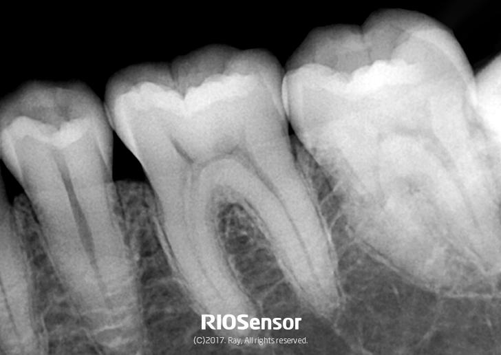 RIOSensor_High-Definition Image (2)