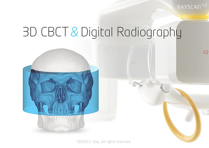 3D CBCT & Digital Radiography