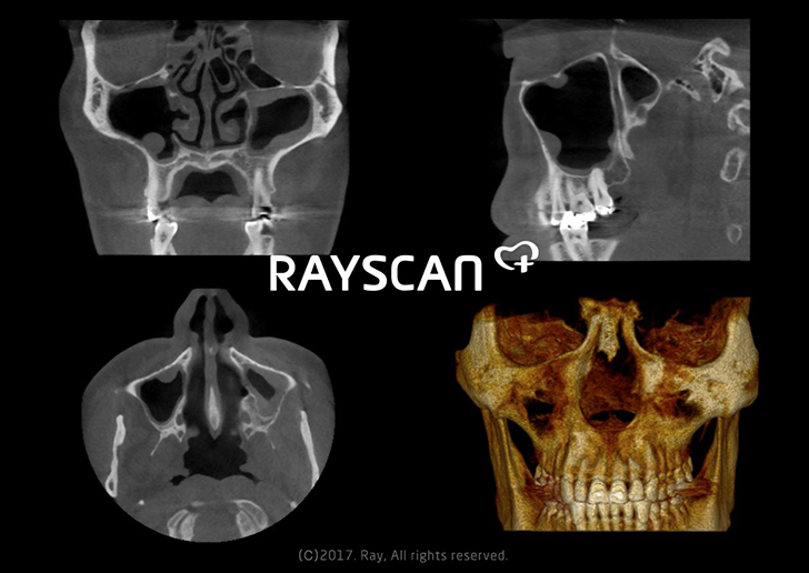 RAYSCAN m+