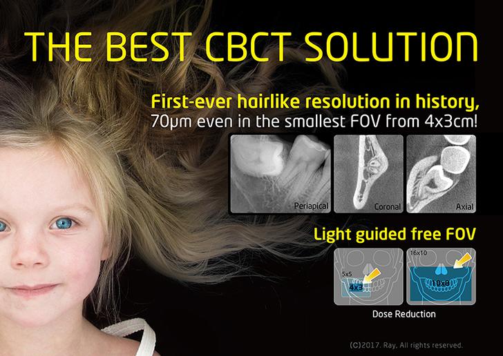 Best CBCT Solution for Endodontics